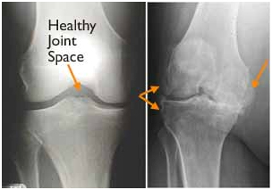 Joint Replacement In Nagpur Joint Replacement Surgeon In